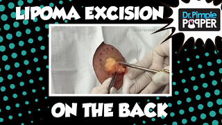 Lipoma excision, Upper Back - Video