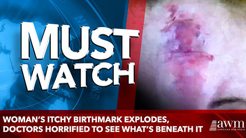 Woman's Itchy Birthmark Explodes, Doctors Horrified To See What's Beneath It