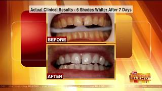 Up Your Confidence with a Whiter Smile - Video