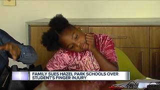 Family sues metro Detroit schools over student finger injury - Video
