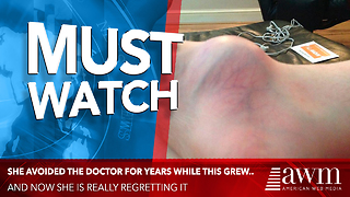 She Had To Have Her Leg Amputated After Ignoring A Bump For Too Long - Video
