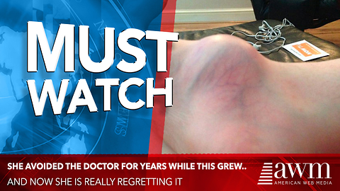 She Waited Years To Have Her Foot Checked Out. Doctors Deliver News No One Saw Coming