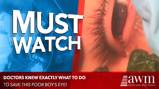 Worm Almost Ruins Young Boy's Eyesight Until Doctors Do THIS - Video