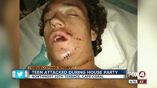 Teen recovering after being jumped at Cape party