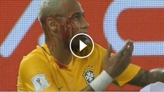 Neymar's face covered with blood ... That's awful :( :( :( Brazil 5-0 Bolivia - Video