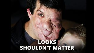 Face tumor man: NO to surgery, looks shouldn't matter - Video