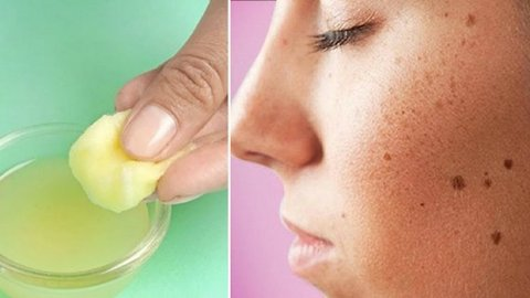 How To Use Lemon For Dark Spots | Health and Nutrition Channel