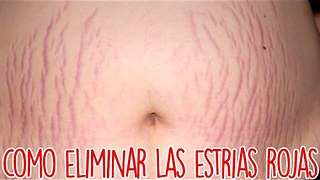 Como Eliminar Las Estrias Rojas - Video