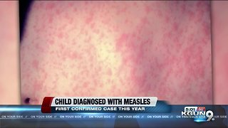 First Confirmed Case of Measles in Arizona for the year