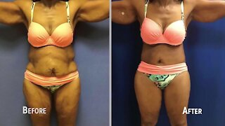 Give yourself the body you've always wanted with body contouring surgeon, Dr. James Chao