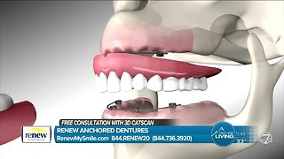FREE Consultation and CAT Scan - Renew Anchored Dentures