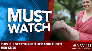 This Surgery Turned Her Ankle into Her Knee - Video
