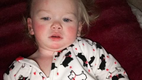 Tot allergic to water breaks out in burning rash from own tears – and is now being taught not to cry