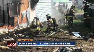 Man severely burned in Pasco house fire