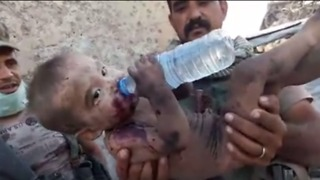 Child Takes Water After Being Rescued From Under Rubble in Old Mosul - Video
