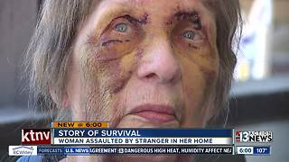 80-year-old assault victim shares story of survival