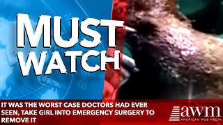 It Was The Worst Case Doctors Had Ever Seen, Take Girl Into Emergency Surgery To Remove It - Video