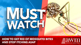How to Get Rid of Mosquito Bites and Stop Itching ASAP - Video