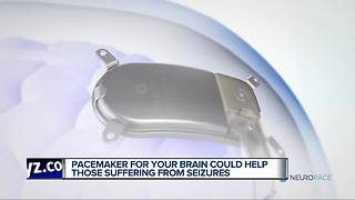 Pacemaker for your brain could help those suffering from seizures