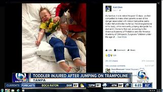 Trampoline injury puts Florida boy in body cast - Video