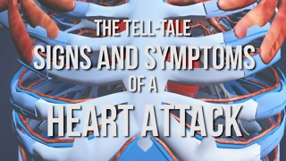The Tell-Tale Signs and Symptoms of a Heart Attack - Video
