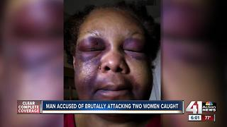 KC man charged with beating his 74-year-old girlfriend arrested in Texas - Video