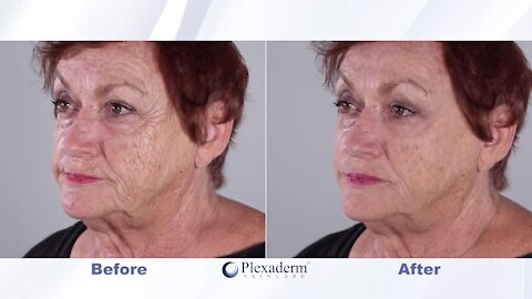 Don't look your age! Take the Plexaderm 10-minute challenge