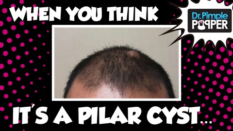 Thought it was a Pilar, but it's an Epidermoid Cyst