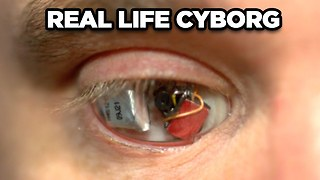 10 Real Life Cyborgs - Video