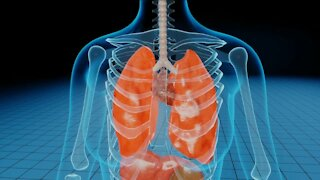 COVID-19 AND LUNG CANCER
