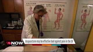 Ask Dr. Nandi: Acupuncture may be effective tool against pain in ER - Video