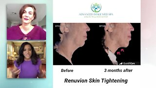 Look more youthful with a natural glow from Advanced Image Med Spa and Elite Wellness Center