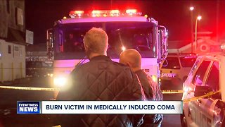 Burn victim in medically induced coma