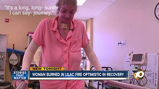 Woman burned in Lila Fire optimistic in recovery - Video