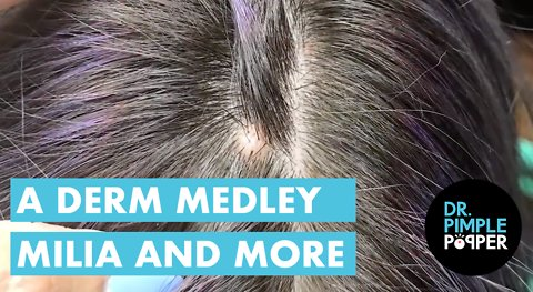 A Dermatology Medley - Milia and Beyond