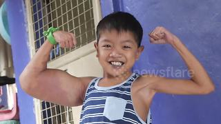 Boy, 11, dubbed 'Popeye' after mystery condition gives him huge biceps - Video