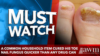 A Common Household Item Cured His Toe Nail Fungus Quicker Than Any Drug Can - Video