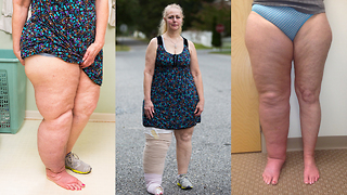 This Woman's Leg Has Swollen Up Three Times Its Size - Video