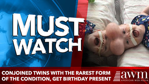 Conjoined twins with the rarest form of the condition, get Birthday Present