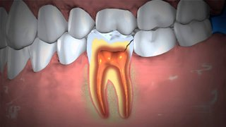 Natural cures: How to treat an abscessed tooth