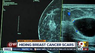 Local doctor performs 'hidden scar' surgery on breast tumors