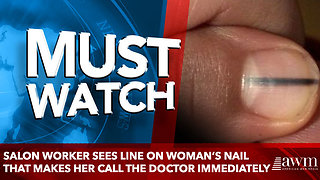Salon Worker Sees Line on Woman's Nail That Makes Her Call the Doctor Immediately - Video