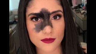 Model becomes famous over birthmark on face