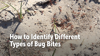How to Identify Different Types of Bug Bites - Video