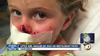 Little girl bitten by dog restaurant patio - Video