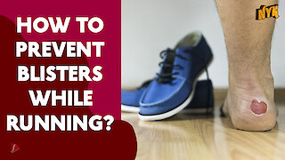 How To Prevent Blisters While Running?