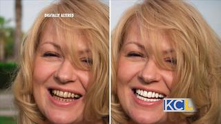 Whiten your teeth in 5 minutes - Video