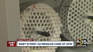 Officials: One-year-old diagnosed with measles in Pima County