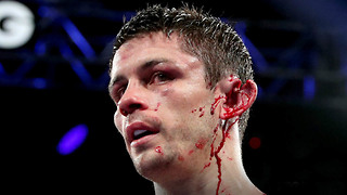 OUCH! Boxer Stephen Smith Gets Ear RIPPED in Half During Head Collision - Video
