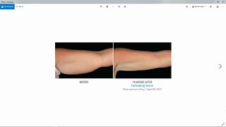 Get Rid of that Stubborn Fat with CoolSculpting